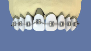 Extraction orthodontique et implant